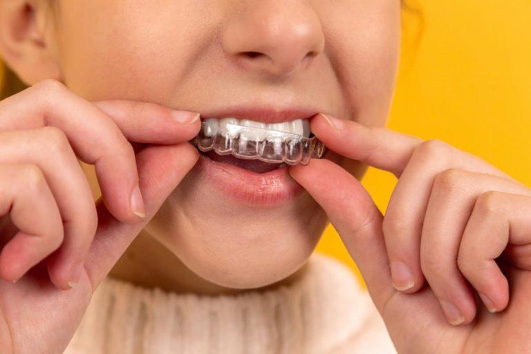 Dlaczego warto nosić aparat ortodontyczny?